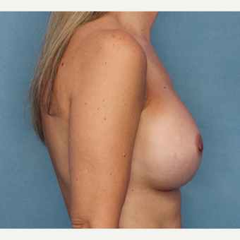 Breast Augmentation after 3062920