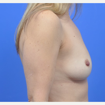 Breast Augmentation before 3062920