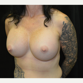 45-54 year old woman treated with Breast Augmentation after 3181926