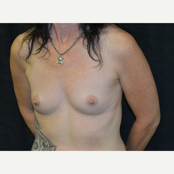 45-54 year old woman treated with Breast Augmentation before 3181926