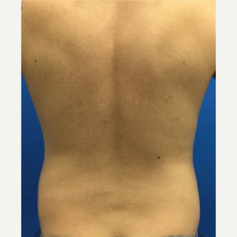 35-44 year old man treated with Laser Liposuction before 3221145