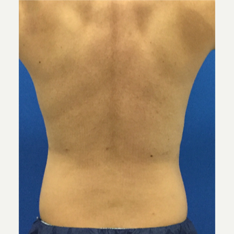 35-44 year old man treated with Laser Liposuction after 3221145