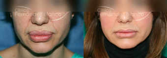 35-44 year old woman treated with Lip Reduction