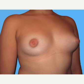 Breast Lift with Implants before 3748799