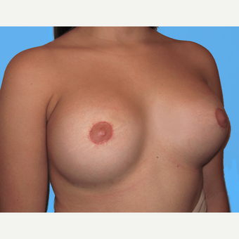 Breast Lift with Implants after 3748799