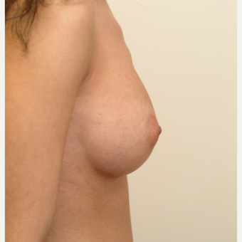 18-24 year old woman treated with Breast Implants after 3741937