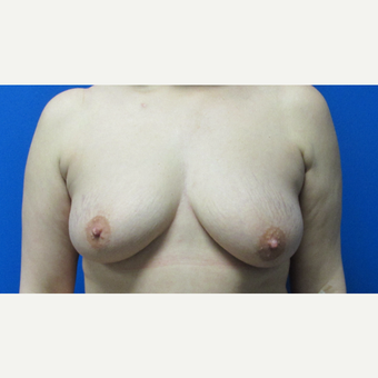 44 year old woman treated with a breast lift before 3703007