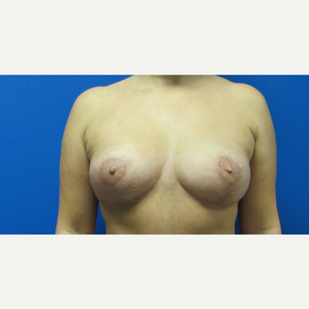 44 year old woman treated with a breast lift after 3703007