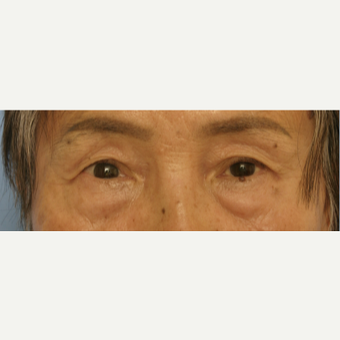 65-74 year old woman treated with Eyelid Surgery before 3503106