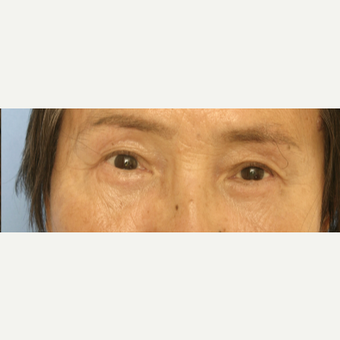 65-74 year old woman treated with Eyelid Surgery after 3503106