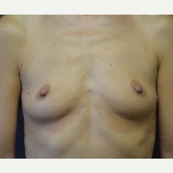 45-54 year old woman treated with Breast Augmentation before 3455399