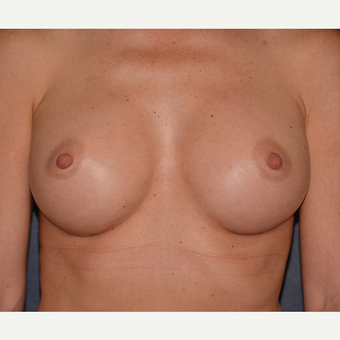 45-54 year old woman treated with Breast Augmentation after 3455399