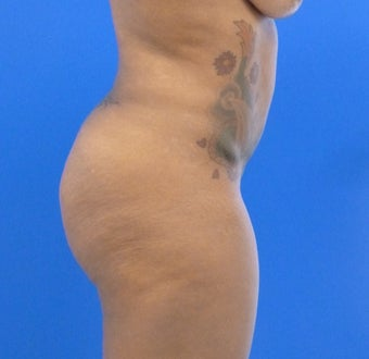 34 y.o. female – Liposuction of abdomen, flanks, and back with fat transfer to buttocks & hips– 1250cc per side 1440432