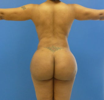 34 y.o. female  Liposuction of abdomen, flanks, and back with fat transfer to buttocks & hips 1250cc per side