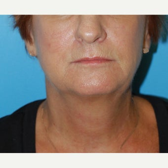 45-54 year old woman treated with Non Surgical Lift