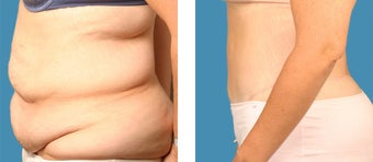 Tummy tuck - 34 year old female after 1144942