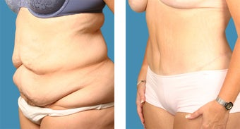 Tummy tuck - 34 year old female 1144942