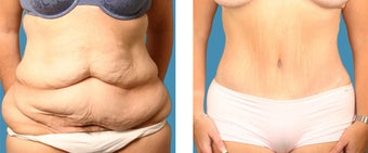 Tummy tuck - 34 year old female before 1144942