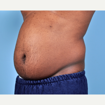 25-34 year old man treated with Liposuction before 3810115