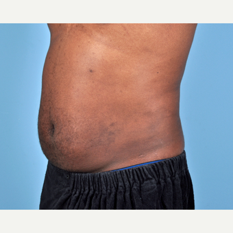 25-34 year old man treated with Liposuction after 3810115