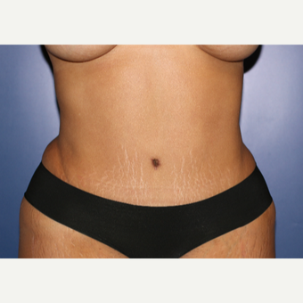 35-44 year old woman treated with Tummy Tuck after 3695946