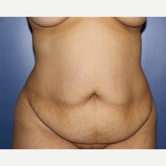 35-44 year old woman treated with Tummy Tuck before 3695946