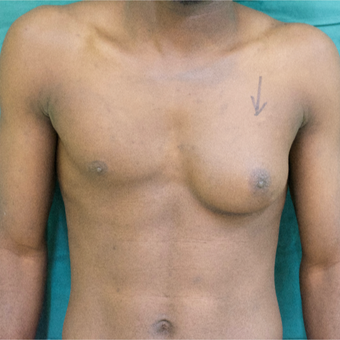 25-34 year old man treated with Male Breast Reduction before 3705152