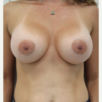 25-34 year old woman treated with Breast Augmentation after 3141932