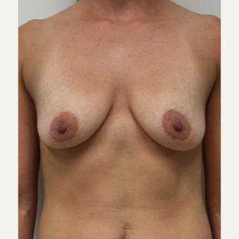 25-34 year old woman treated with Breast Augmentation before 3141932