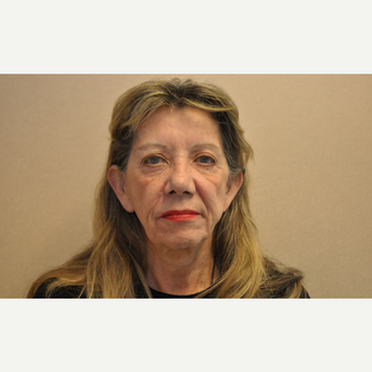 65-74 year old woman treated with Facelift before 3103071