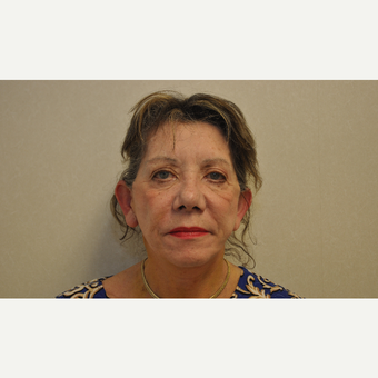 65-74 year old woman treated with Facelift after 3103071