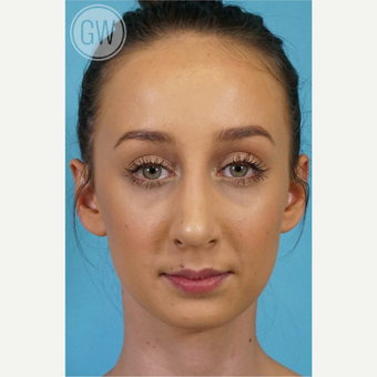 25-34 year old woman treated with Rhinoplasty after 3473403