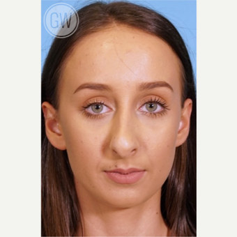 25-34 year old woman treated with Rhinoplasty before 3473403