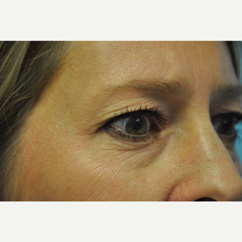 45-54 year old woman treated with Upper and Lower Eyelid Surgery before 3075343
