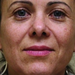 Juvederm before 1605472