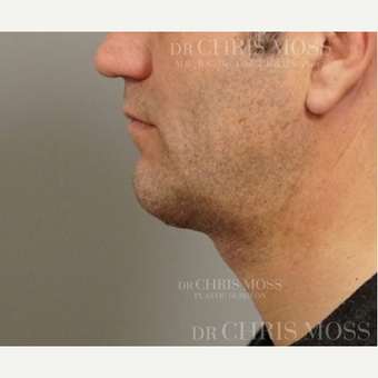 "Neck Lift performed on 50 year old male who described his ageing ""turkey"" neck after 3834704"