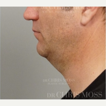 "Neck Lift performed on 50 year old male who described his ageing ""turkey"" neck before 3834704"