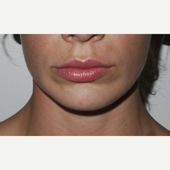 Young woman treated with Juvederm Lip Injection after 3001826