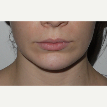 Young woman treated with Juvederm Lip Injection before 3001826