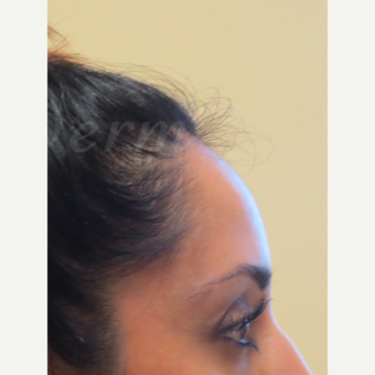 35-44 year old woman treated with Botox after 3381405