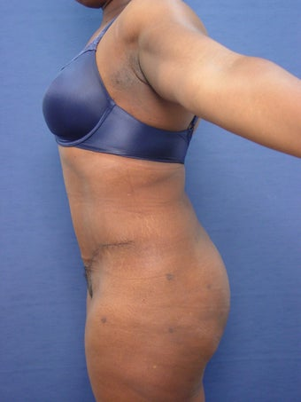 35-44 year old woman treated with Brazilian Butt Lift Revision after 2588647