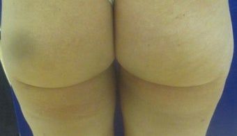 35 Year Old Female Treated 1 Time for Cellulite with Cellulaze Laser 1198881