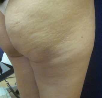 35 Year Old Female Treated 1 Time for Cellulite with Cellulaze Laser before 1198881