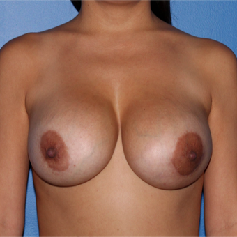 45-54 year old woman treated with Breast Implant Revision after 3218924