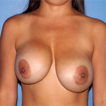45-54 year old woman treated with Breast Implant Revision before 3218924