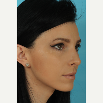 25-34 year old woman treated with Rhinoplasty after 3628743