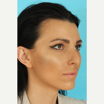 25-34 year old woman treated with Rhinoplasty before 3628743