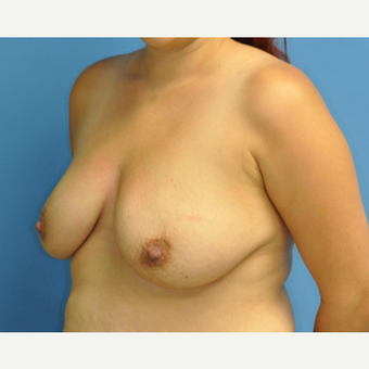 25-34 year old woman treated with Breast Lift with Implants before 3816475