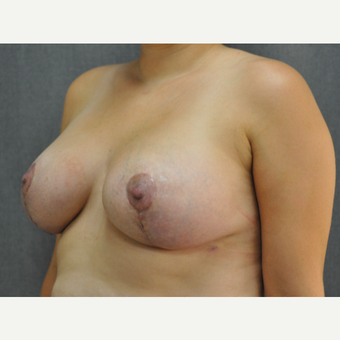 25-34 year old woman treated with Breast Lift with Implants after 3816475