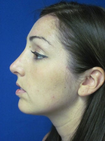 Rhinoplasty after 397022